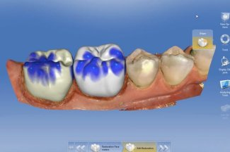 CEREC dental crowns issaquah renton